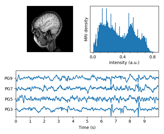 ../../_images/mri_with_eeg.png