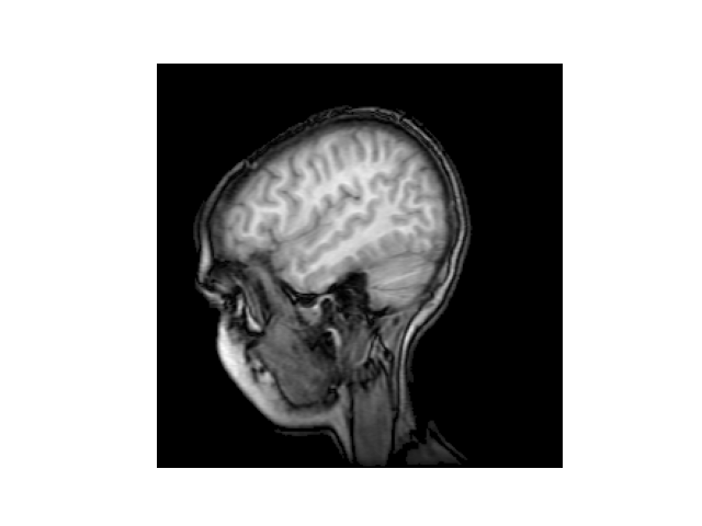 MRI示例
