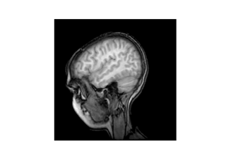 ../_images/sphx_glr_mri_demo_thumb.png