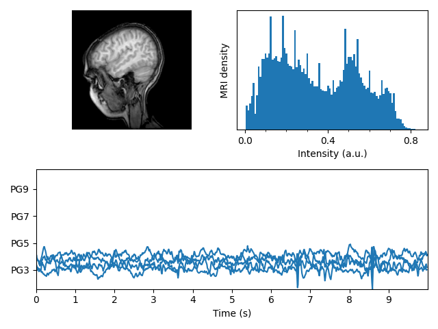 ../../_images/sphx_glr_mri_with_eeg_001.png